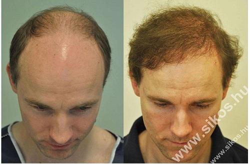 A hajbeültetési beavatkozás képekkel illusztrálva!