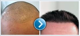 Kirándulás közbeni Hair transplant!?