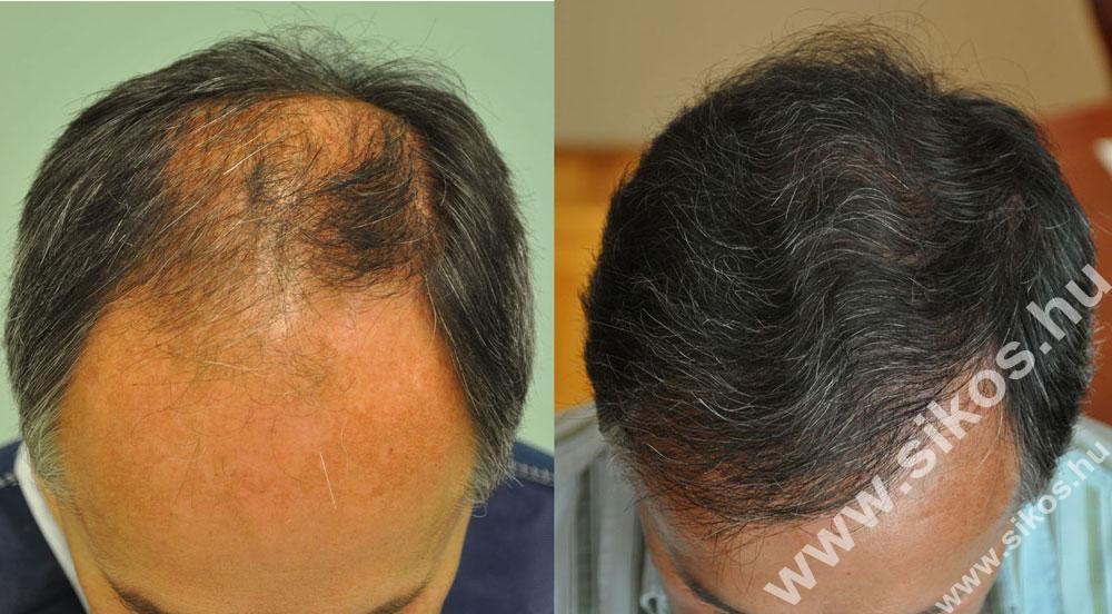 Mikor alkalmazzák a hajbeültetést?